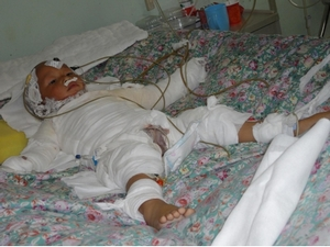 传递爱心,关爱生命,拯救烧伤2岁烫伤孩童活动