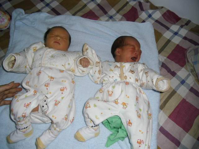 瑞昌市人民医院医务人员工作不负责导致双胞胎新生儿死亡