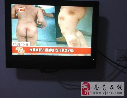 女童在托儿所被咬,伤口多达29处