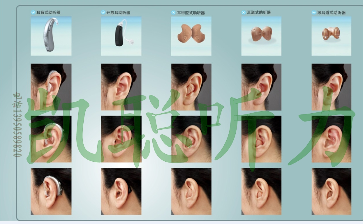 [原创]宁德听力耳聋障碍服务中心