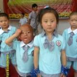 [求助]关注残疾儿童