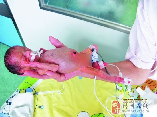 """[推荐][分享][原创]出生体重仅600克,漳州""""巴掌姑娘""""勇闯鬼门"""