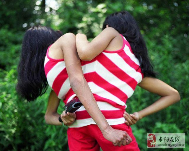 纪实摄影:连体姐妹的真实生活