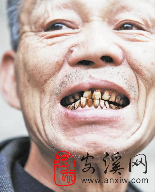 儿童牙齿问题中,最多的是蛀牙