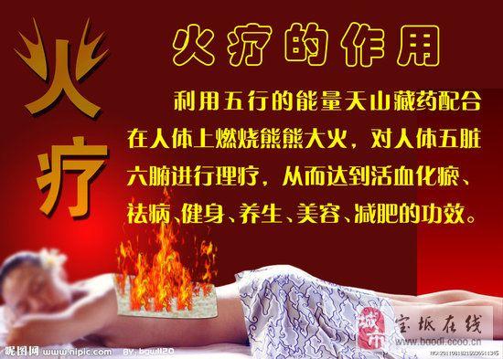 火療、電療、臍療定制火療液、臍療藥